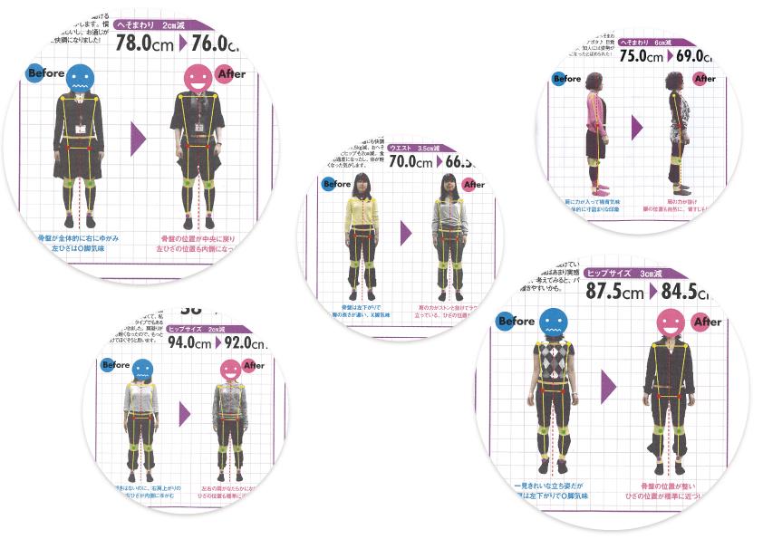 ゆがみーる雑誌掲載事例02